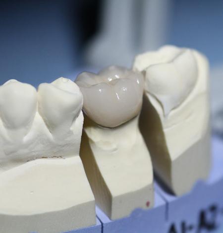 dentiste cergy le haut omnipratiqe courante cabinet dentaire dr amram zana florence. Black Bedroom Furniture Sets. Home Design Ideas