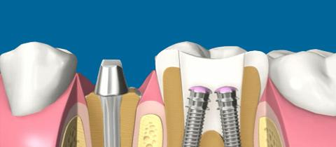 dentiste cergy le haut contact cabinet dentaire dr amram zana florence chirurgien dentiste. Black Bedroom Furniture Sets. Home Design Ideas